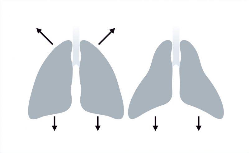 Рис. 1. Слева – форма грудной клетки здорового человека. Справа – килевидная деформация грудной клетки при СМА.